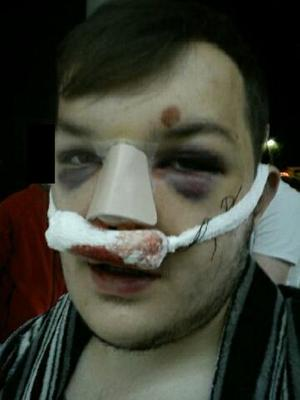 Connor Murray after the attack