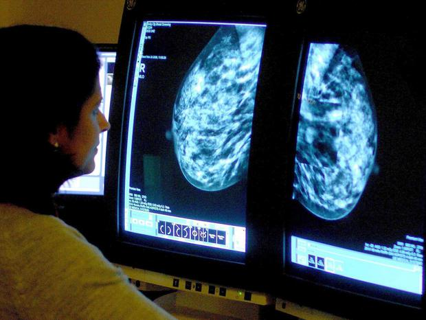The Tagrisso treatment for early stage cancer is not approved in NI. (PA)