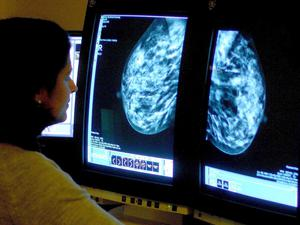 Ms Foster said most women who attended breast screenings would receive a clear result but it was more important now that people checked for lumps and other warning signs and if concerned went to their doctors (Rui Vieira/PA)