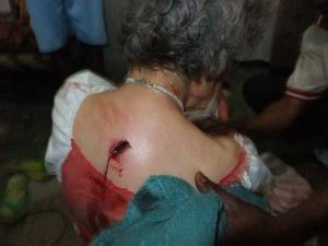 Bullet exit wound in her back