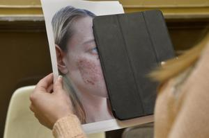 A woman who was hurt in the attack shows a picture of the cheek injuries she sustained at the time
