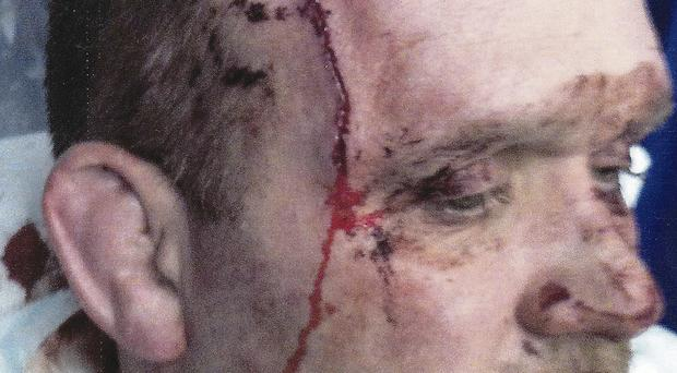 Sergeant Mark Wright's horrific injuries following the knife attack in Lurgan