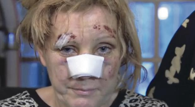 Donna Hawkins after she sustained multiple injuries while fighting off a gang of three men intent on raping her