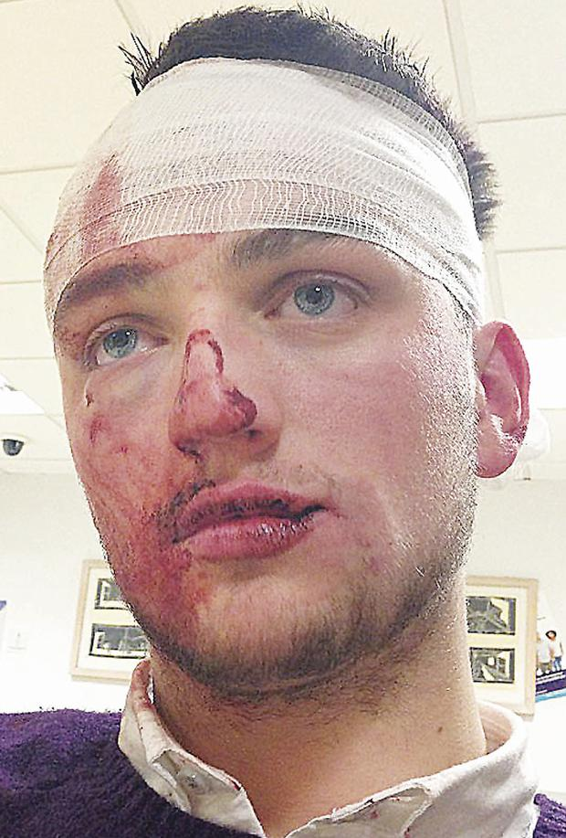 Glentoran winger Jim O'Hanlon after he was allegedly assaulted in Belfast on Saturday night