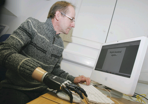 Stephen Lowry with his state-of-the-art bionic hand as he works at his computer. Picture Banbridge Chronicle