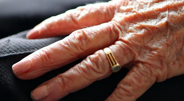 More Alzheimer's sufferers need to be treated in the community and allowed to die at home, an expert has said