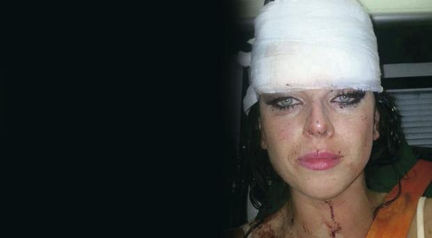 Natasha Quinn in an ambulance after the brutal attack