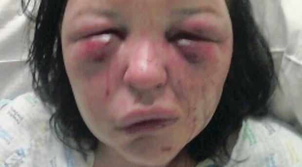 Terri-Louise Graham was subjected to a sickening campaign of domestic abuse