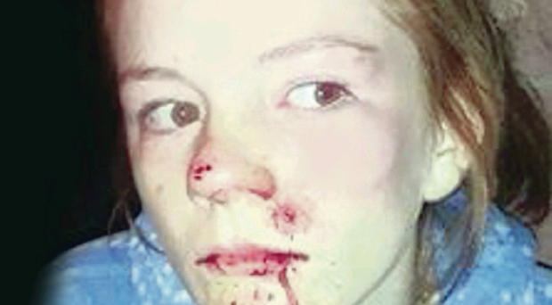 Shannon Thompson who was beaten up in east Belfast on Tuesday night