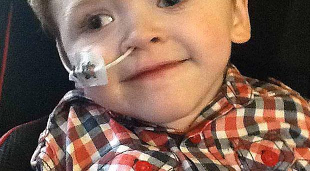 Callum Logue was diagnosed with a rare condition soon after birth