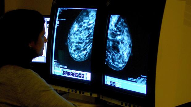 Mammography machines in Belfast and Derry have been replaced with new digital technology