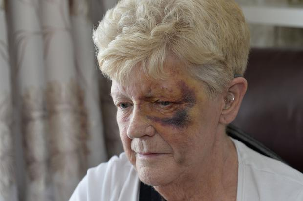 Battered and bruised Betty Young at her home yesterday