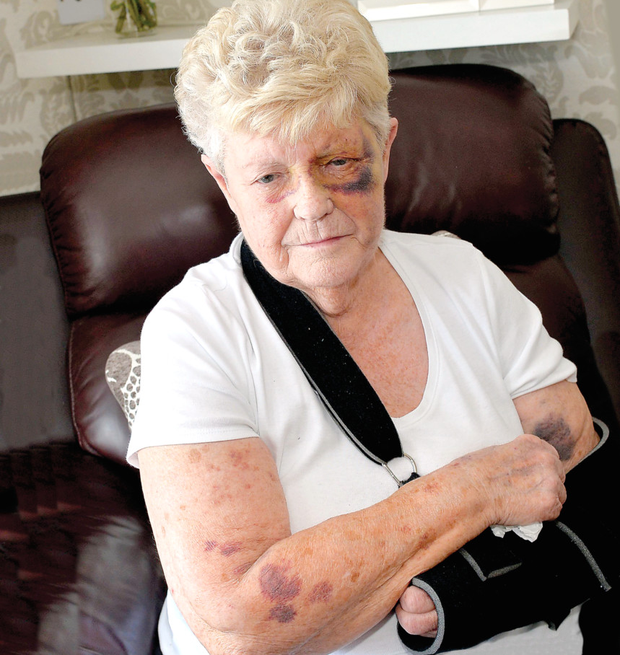 Bruised: mugging victim Betty Young