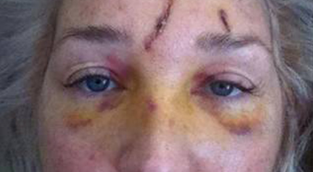 Andrea McVeigh shows the injuries she suffered after being knocked over by the cyclist, who police wish to speak to