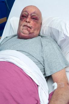 Danny Gallagher is in hospital following a brutal beating after refusing to hand over his phone