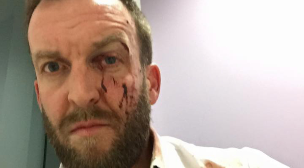 Joseph Bloomer was injured after he was glassed in the face as he left Barney's Bar in Antrim