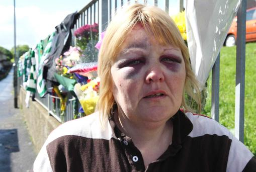 Kevin McDaid's widow Evelyn after the attack