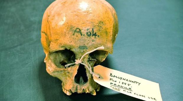 The skull of a farmer woman who lived near Belfast 5,200 years ago was found to have ancestry that could be tracked to the Middle East (Trinity College Dublin/PA)