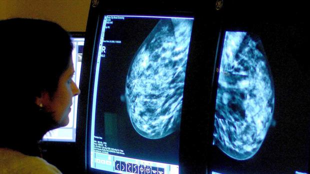 Scientists have moved a step closer to being able to predict the likelihood that very early tumours will develop into full-blown breast cancer