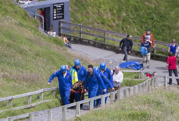 The woman is carried away from Carrick-a-Rede to an ambulance