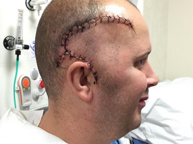 Kevin shows the large scar from his operation