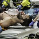 Jamie Dornan as Paul Spector on the operating table