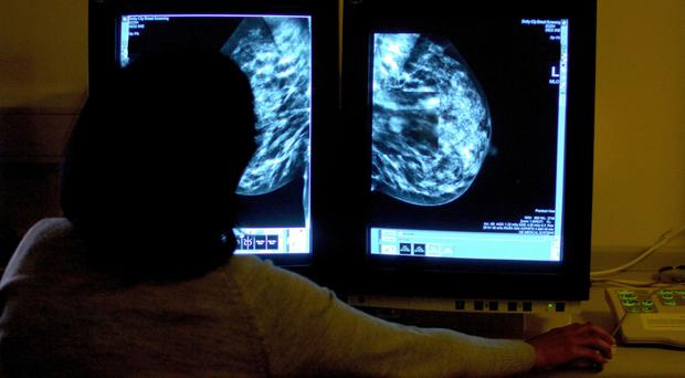 The UK has one of the lowest number of breast radiologists in Europe