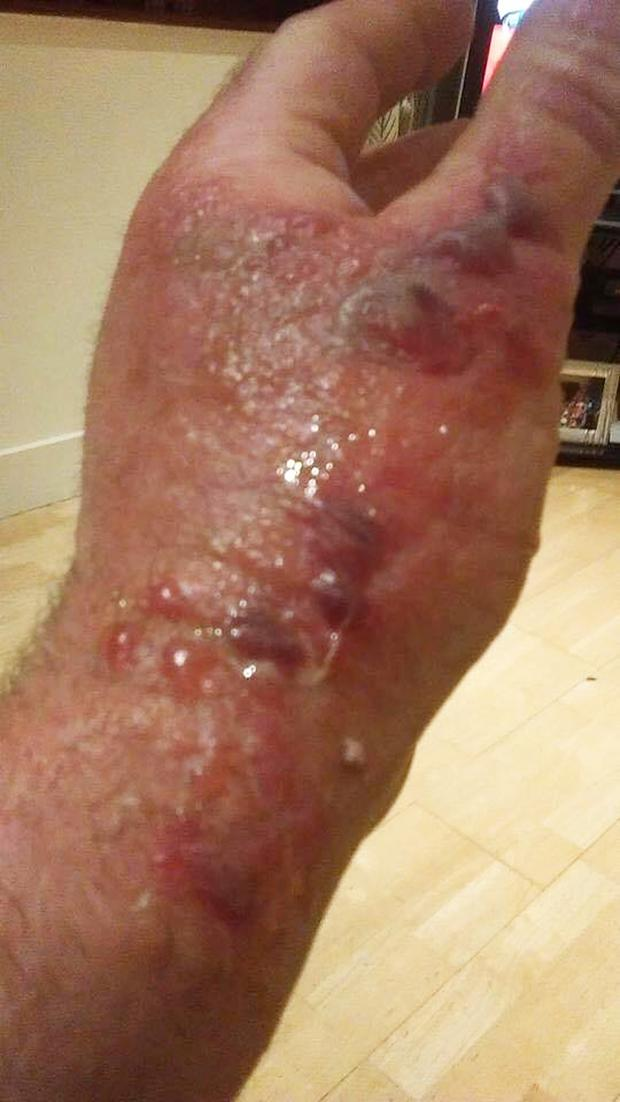 Tommy McGrath's hand after coming into contact with giant hogweed