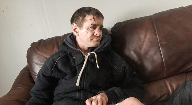 Mickey Diver has been left injured and distraught following the weekend attack at his Co Tyrone home