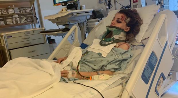 Karmen Curley was put in intensive care after a scooter crash in Los Angeles