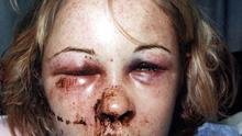 Lynne McGall's injuries