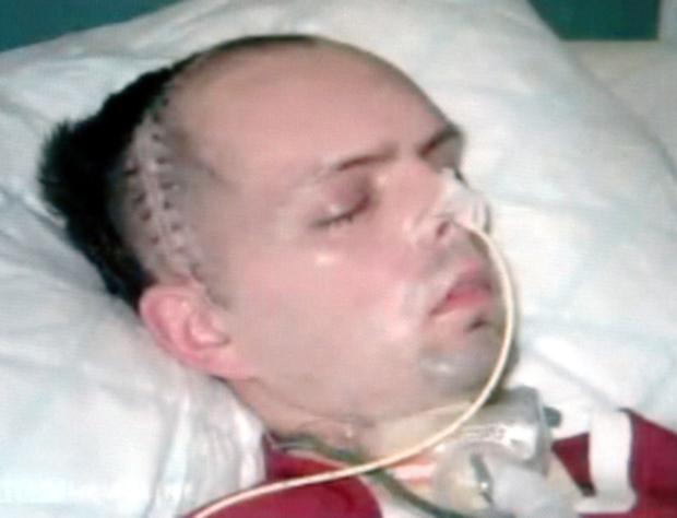Paul McCauley in hospital after the attack