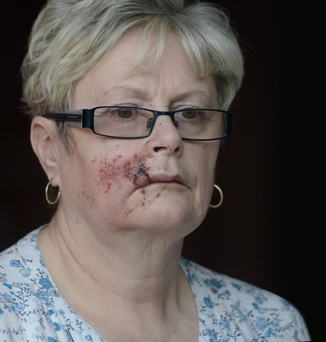 Sandra Major suffered facial injuries after the coach in which she was travelling was attacked