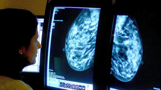 Analysis suggests cancer diagnoses are down because of coronavirus (Rui Vieira/PA)