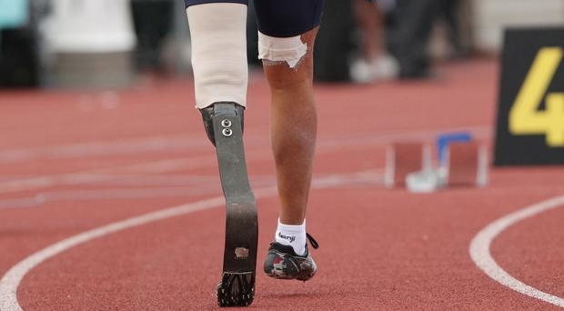 Mr McLaughlin has appealed for his prosthetic to be returned
