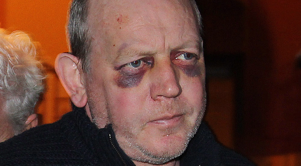 McAuley at court days after incident