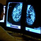 Generic stock picture of a consultant analysing a mammogram.
