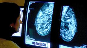 Concerns have been raised over the treatment options for secondary breast cancer patients during the Covid-19 pandemic (PA)