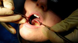 Children in Northern Ireland receive more fillings than in other parts of the UK(Rui Vieira/PA)