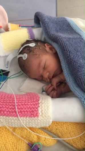 The electrical signals in Oscar's brain were monitored (NNUH/PA)
