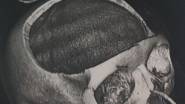 X-ray showing part of Steph Blake's skull removed following the road accident (Irwin Mitchell Solicitors/PA)