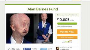 An online fund to help Alan Barnes after he was mugged has been halted after it reached more than £329,000