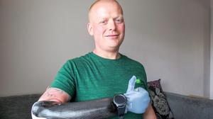 Ian McDonald chose a prosthetic hand instead of a 'hook' offered by the NHS (Digby Brown/PA)