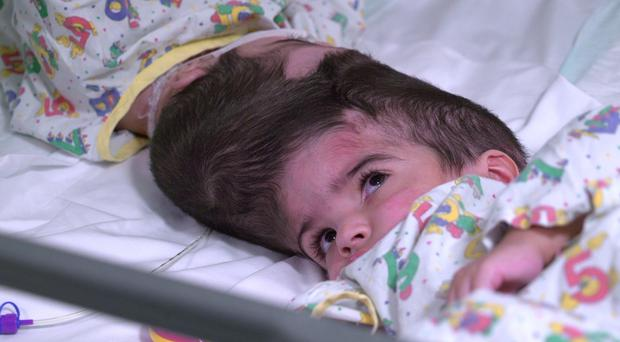 Two-year-old conjoined twins Safa and Marwa Ullah, from Charsadda in Pakistan, have been successfully separated at Great Ormond Street Hospital in London (Family handout/PA)