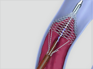 The device is inserted into vein and deploys a basket which touches each wall (Vetex Medical/ PA)
