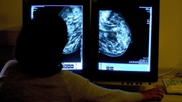 Scientists identify potential risk factors for aggressive form of breast cancer (Rui Vieira/PA)
