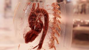Structures described by Leonardo da Vinci are crucial to understanding how the heart works, scientists have said (Siemens Healthineers Cinematic Rendering/PA)