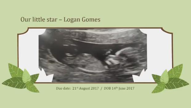 The ultrasound scan for Logan Gomes (Family handout/Grenfell Inquiry/PA)