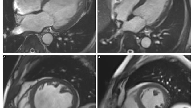 MRI scans of a heart with alcoholic cardiomyopathy, both left, compared with a healthy heart, both right (NIHR Cardiovascular Biomedical Research Unit at Royal Brompton and Harefield NHS Foundation Trust/PA)