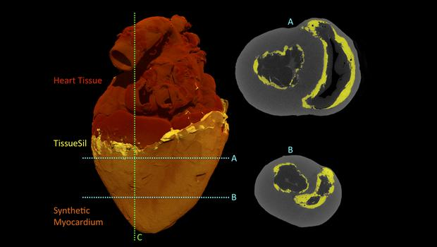 CT scans of the biohybrid heart (Park et al., Sci Robotics)
